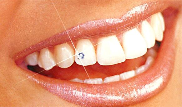 Ատամի զարդաքար