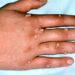 Գորտնուկներով ձեռք