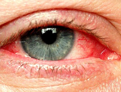 Կարմրած աչք
